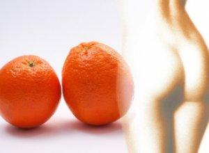 5 способов, которые помогут победить целлюлит